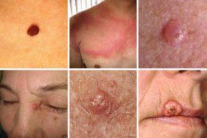 Особенности развития рака кожи