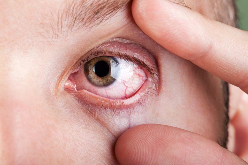 Не допускать попадание средства на глаза