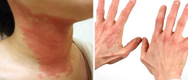 Токсический дерматит